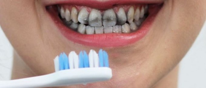 Best Charcoal Teeth Whitening Products